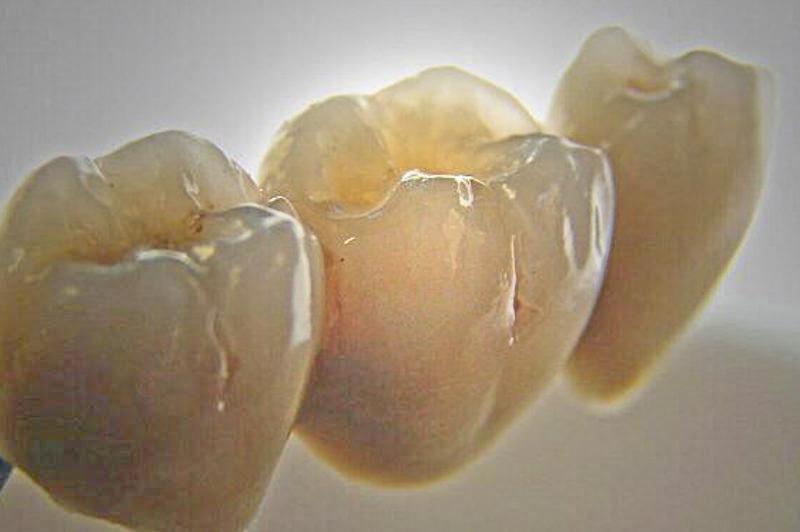 denti in ceramica macellari palmieri