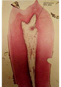 polpa-dentaria studio macellari palmieri